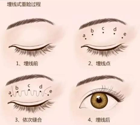 成都婕熹卡整容医院:眼皮松弛也能做埋线双眼皮吗