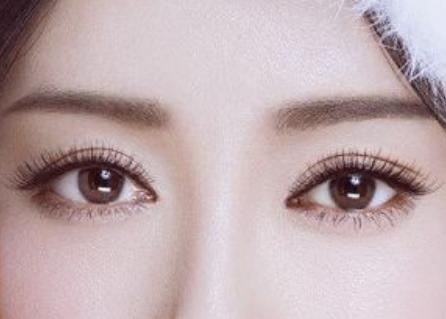 成都婕熹卡医美医院:什么因素影响埋线双眼皮效果维持时间