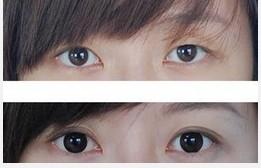 廣州整形 怎么才能讓眼睛逆大 運輸整形