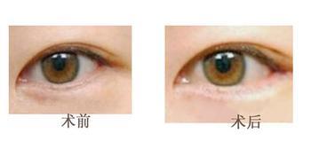 怎樣使眼睛變小變可愛