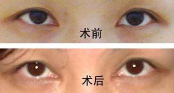 眼睛变大费用一般多少钱