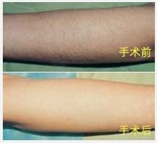广州美容 激光手臂脱毛需要多久