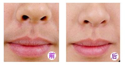 女性激光脱唇毛费用一般多少钱