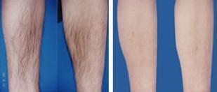 医学激光脱腿毛副作用有没有 美莱周年庆整形美容优惠