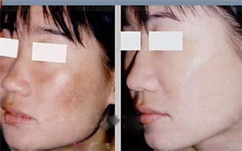 医学针灸美容手术效果好吗
