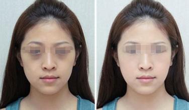 中医祛黑眼圈效果怎样