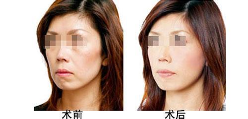 自测皮肤年龄 你的肌肤年龄是多少呢