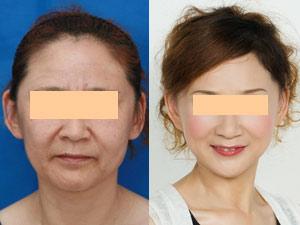 广州美容 中医微针美塑安全吗